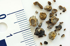 Kmh-TREATING KIDNEY STONES