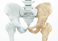 drkmh-Osteoporosis upper limb bones